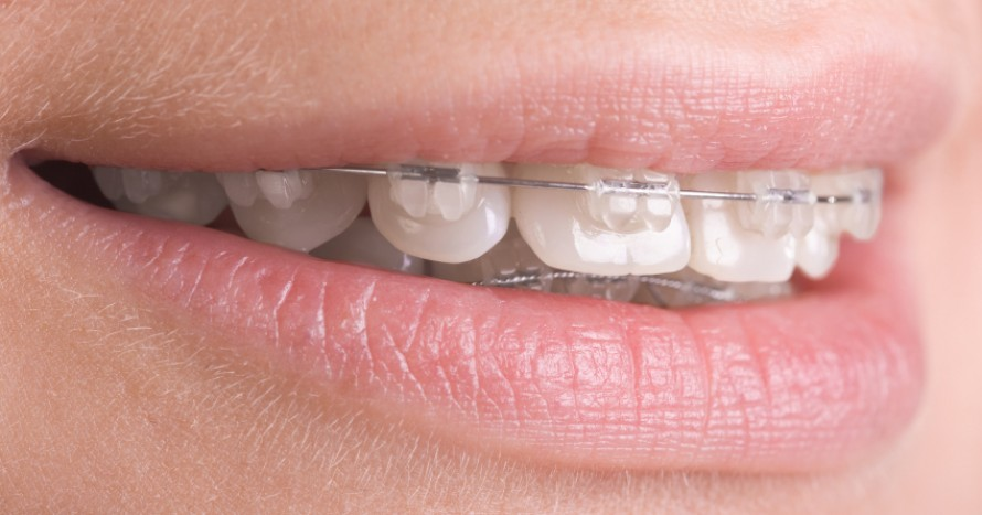 tandställning