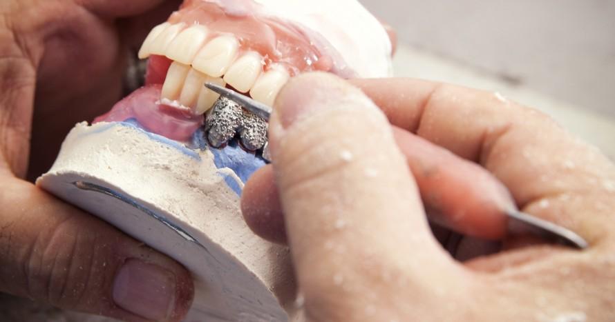 tandtekniker